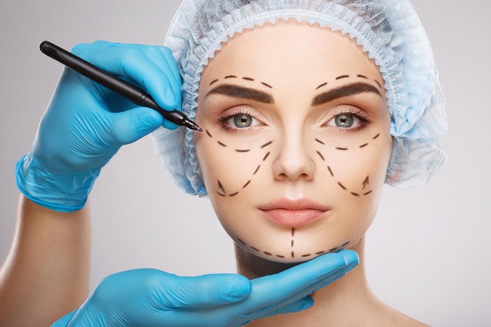 Marcações no rosto da paciente antes de cirurgia plástica