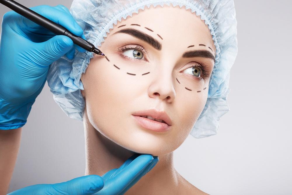 Marcações nos olhos da paciente antes de cirurgia plástica facial