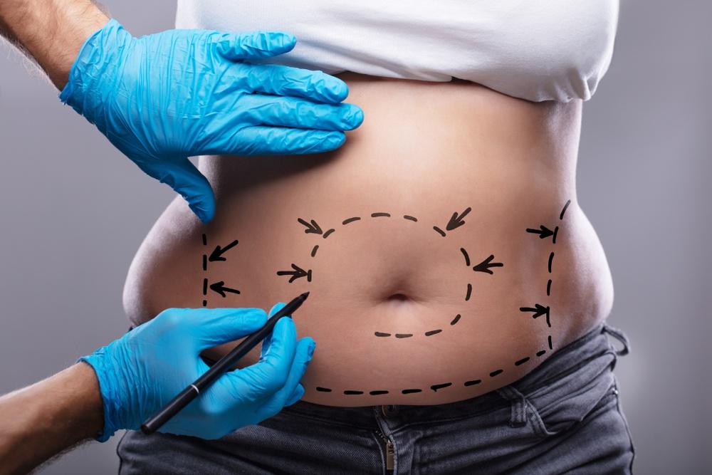 Marcações no corpo da paciente antes da abdominoplastia