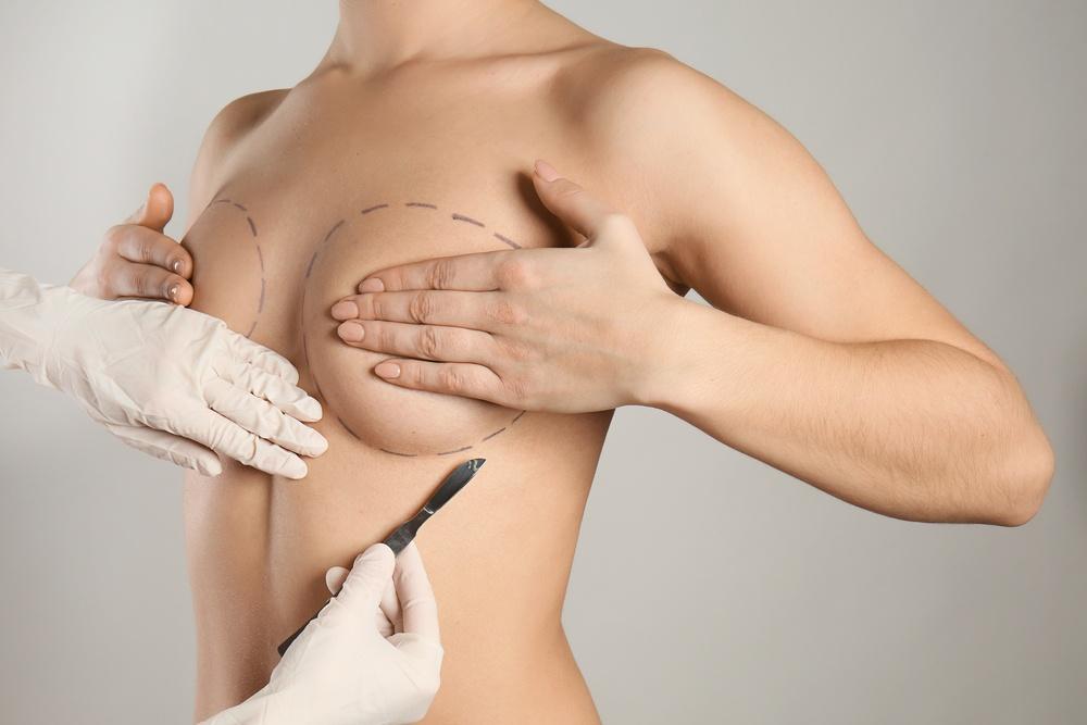 Paciente esconde os mamilos enquanto cirurgião plástico faz marcas para realizar cirurgia nas mamas