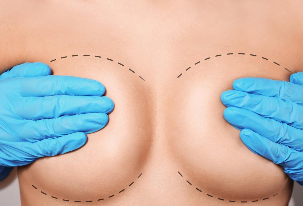 4 principais tipos de cirurgia de mama